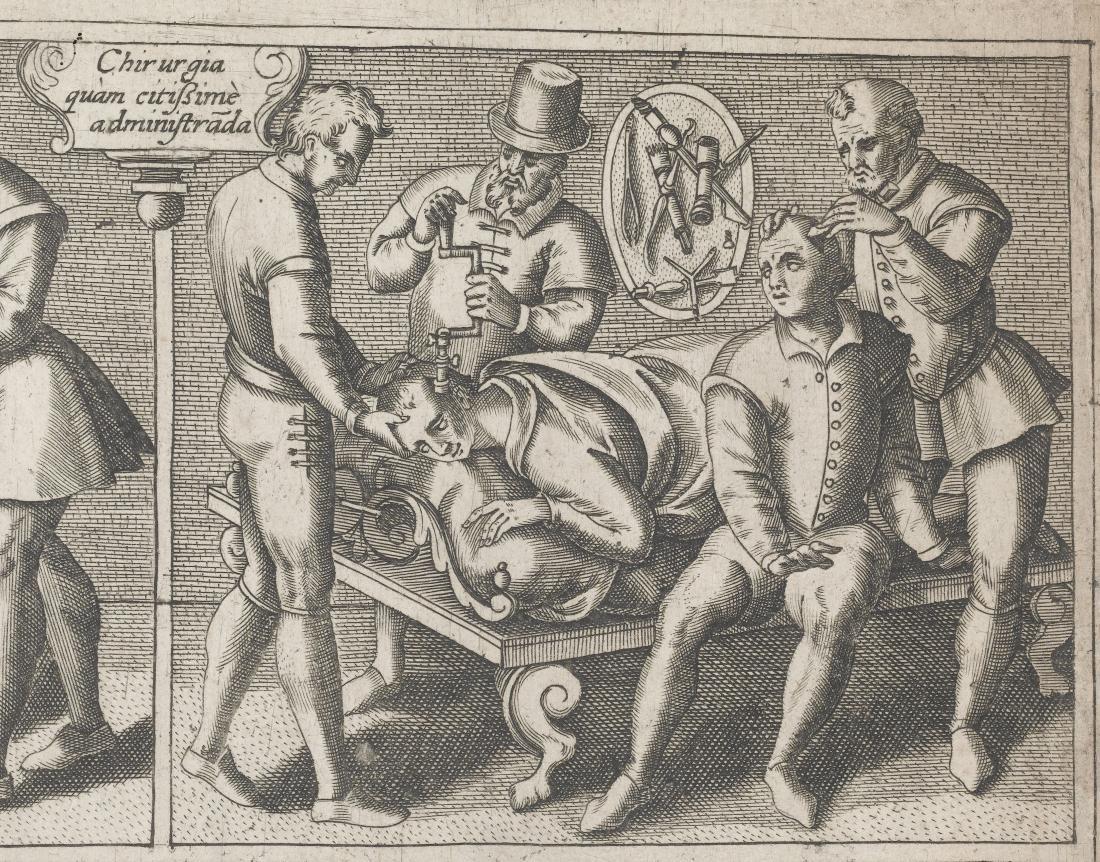 医学历史的好奇心:钻孔术