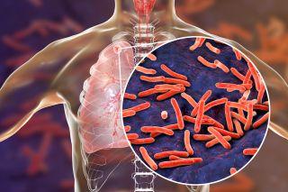 3D image of tuberculosis bacteria.