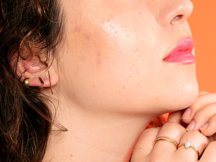 下面是导致你脸上各个部位长粉刺的原因
