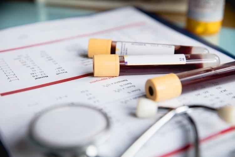 研究人员创造了精确的血液测试来跟踪脂肪酸的摄入